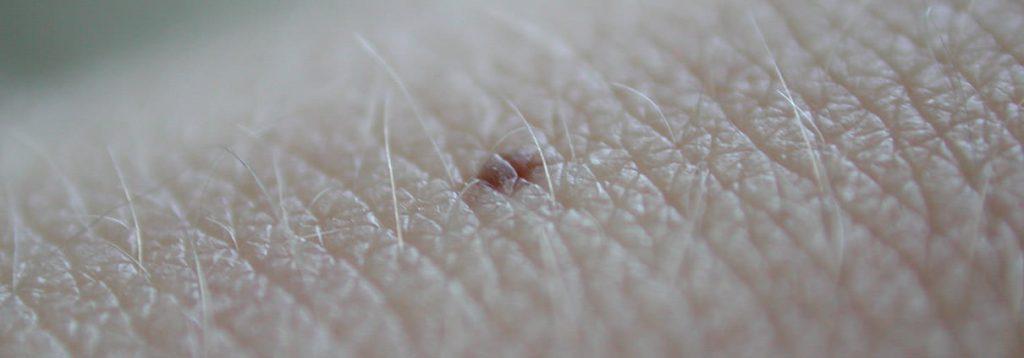 Hautarzt Stuttgart West Hautkrebs Vorsorge